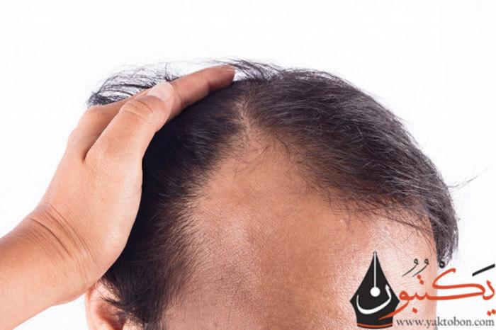 أسباب تساقط الشعر عند الرجال | أهم طرق العلاج الحديثة