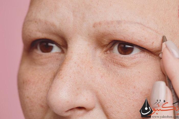 أسباب تساقط شعر الحواجب | طرق فعالة ومجربة للتغلب على تساقط شعر الحاجبين