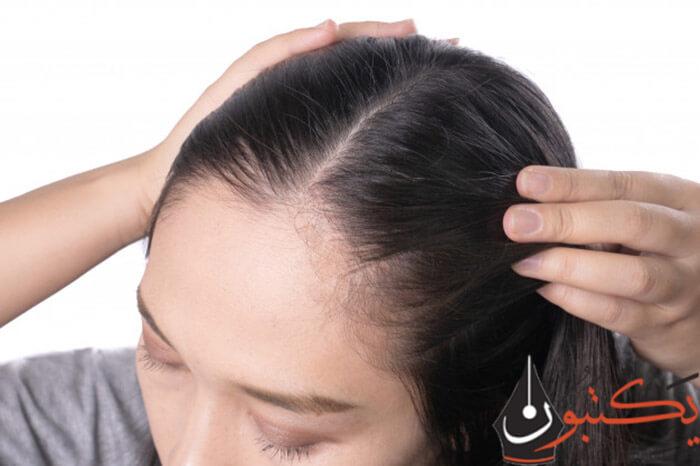 علاج تساقط الشعر بالأعشاب | وصفات ممتازة لوقف التساقط بسرعة